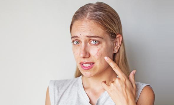Rubia apuntando al acné en su rostro