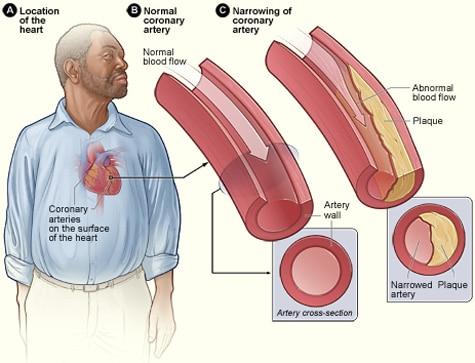Diagrama de enfermedad coronaria