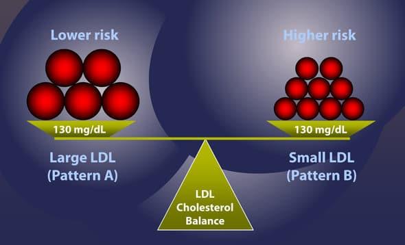 LDL pequeño vs grande